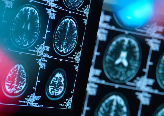 IBM научит искусственный интеллект прогнозировать развитие болезни Хантингтона
